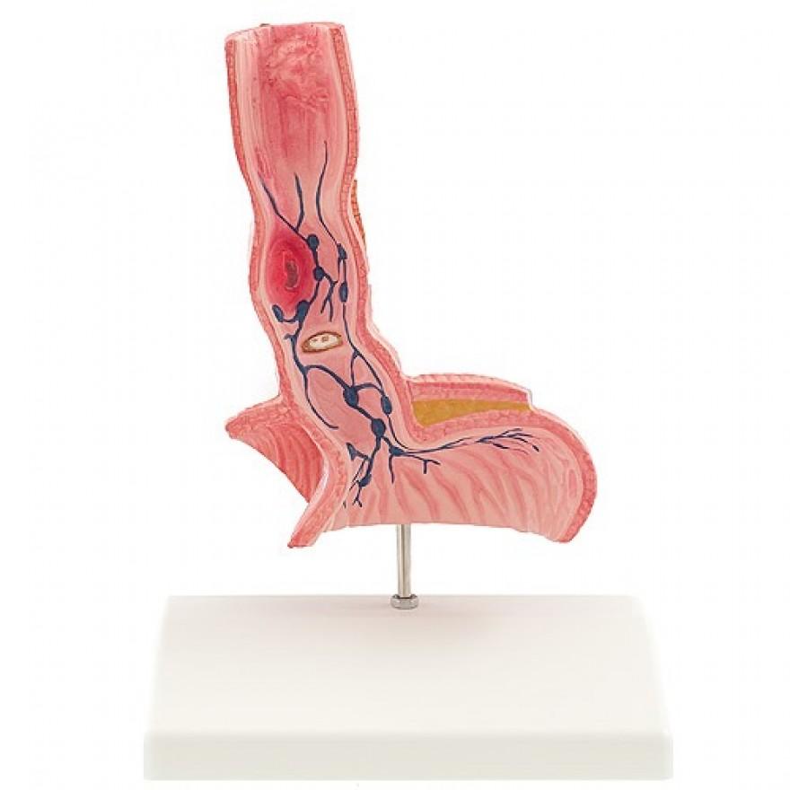 Menschliche Speiseröhre mit ihren Erkrankungen, MEDIC e.U. Onlineshop
